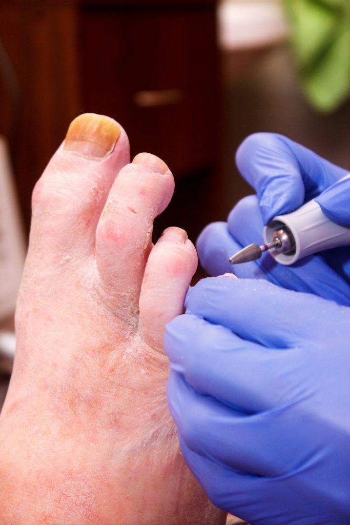 Где сделать медицинский педикюр при грибке ногтей